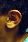 Jackson's Ear Before